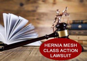 hernia mesh lawyers